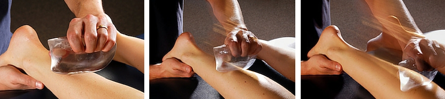In addition to physical therapy we offer ASTYM rehabilitation