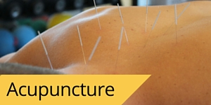 In addition to PT, FPC also offers acupuncture therapy in Tempe AZ